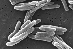 Journée mondiale de lutte contre la tuberculose 2019